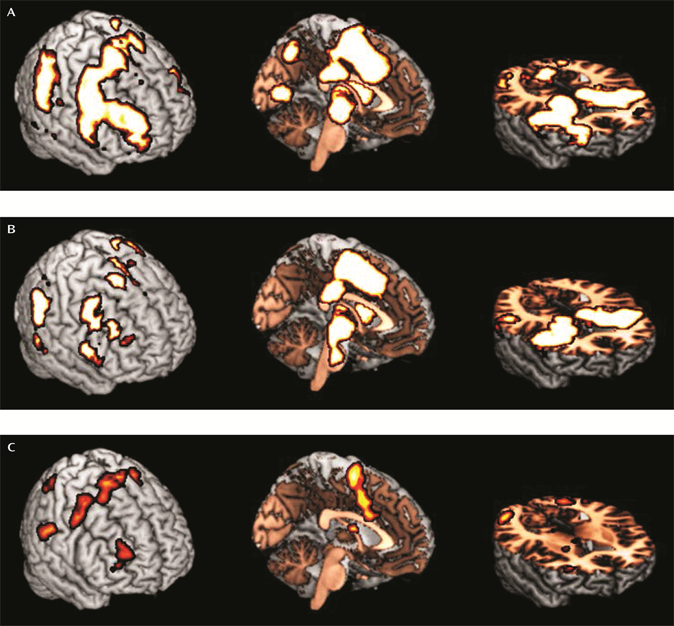 Thalamo-Cortical Activation and Connectivity During Response Preparation in Adults With Persistent and Remitted ADHD